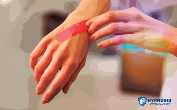 Effectiveness Of Medical Hypnosis For Pain Reduction & Faster Wound Healing In Pediatric Acute Burn Injury: Study Protocol For A Randomized Controlled Trial