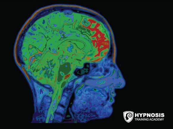 what is trance brain scan