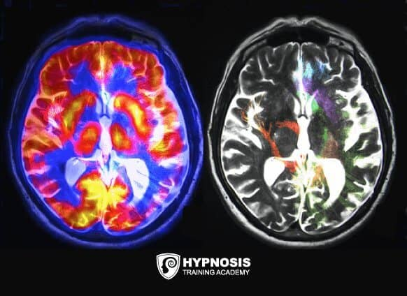 hypnosis-who-is-susceptible-brain-scan.png